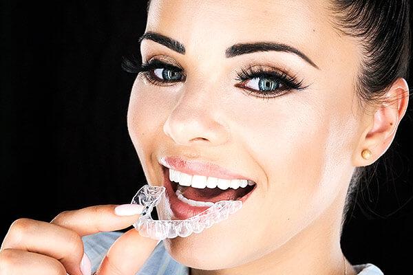 Invisalign in Hannover - Unsichtbare Zahnkorrektur